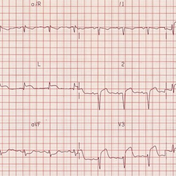 Anterolateral STEMI: ST elevation in V2-6, I and aVL.Reciprocal ST depression in III and AVF.