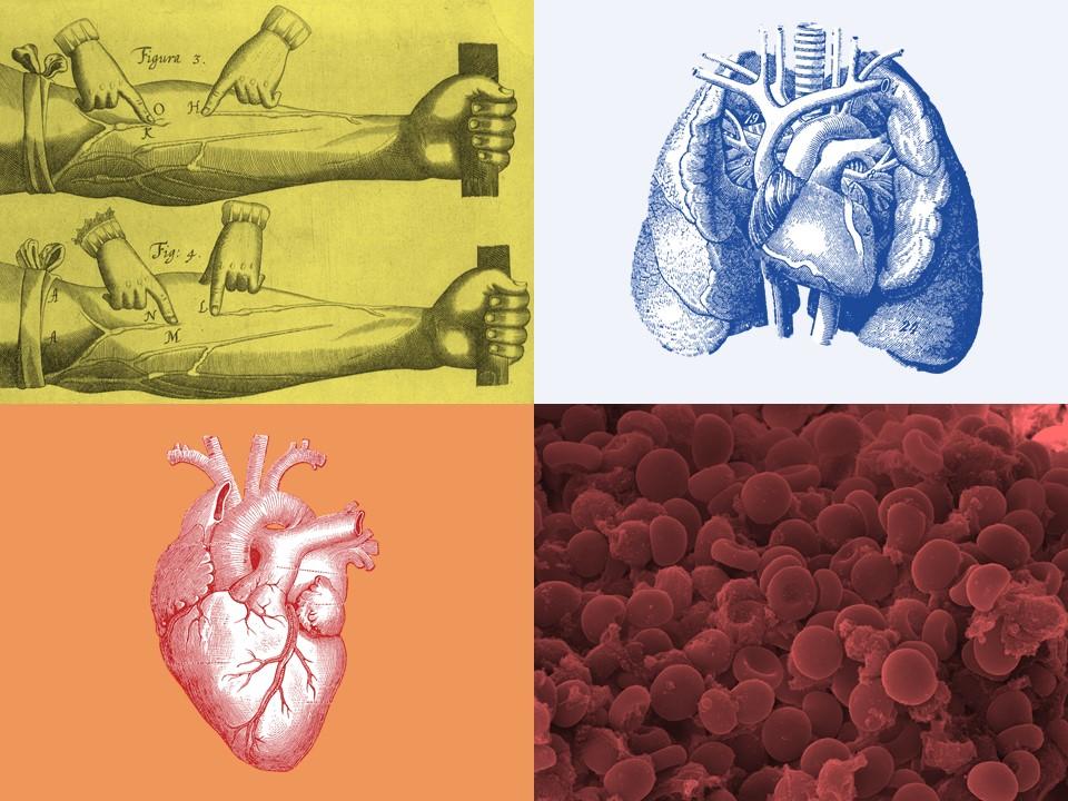 Big Labs, Little People: Troponin, BNP, D-Dimer, and Lactate ...