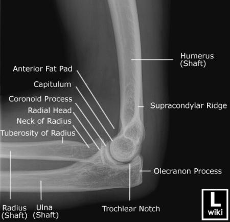Pediatric Elbow Injuries | Pediatric Emergency Playbook
