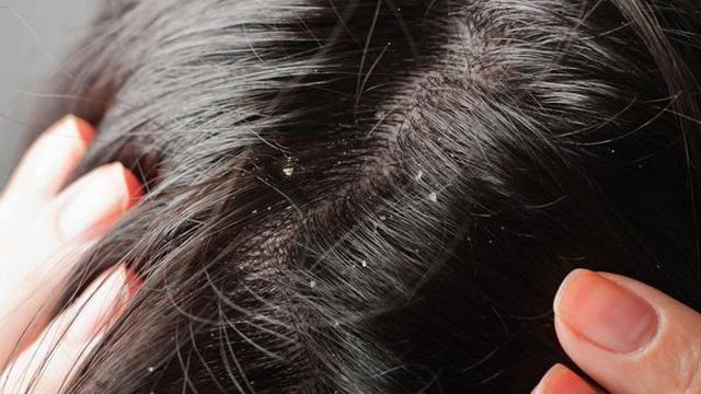kulit kepala