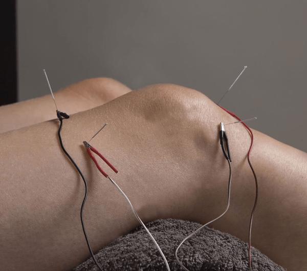 electro needling myotherapy