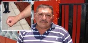 Evidentes las huellas de maltrato físico que sufrió el camarográfo Edgar Lucero Cota, al ser esposado por policías municipales. (Eliseo Zuloaga).