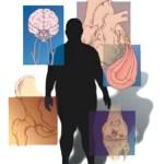 Los trastornos de la circulación en el tejido cerebral, explicó el especialista del Instituto Mexicano del Seguro Social (IMSS), dan paso a la EVC, cuyos primeros síntomas pueden ser confundidos con molestias pasajeras, como dolor de cabeza o mareo.