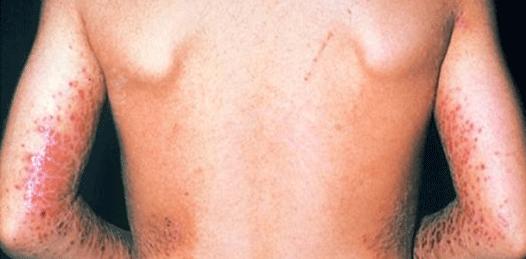 Aumentan los casos de dermatitis atópica