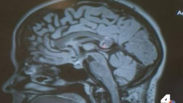 Llevaba a su gemelo ¡en el cerebro!