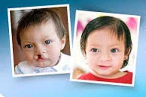Realizan cirugías de labio leporino y paladar hendido