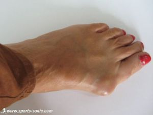 Photo d'un oignon au pied