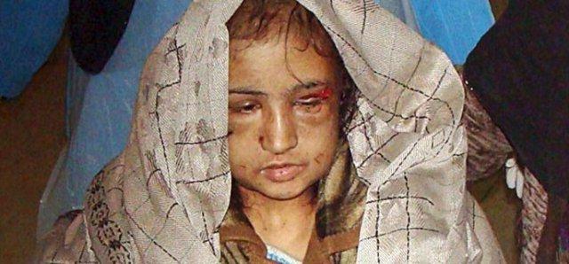Αφγανιστάν, η νύφη – παιδί που βασανίστηκε από τον σύζυγό της και έγινε σύμβολο των ανθρώπινων δικαιωμάτων