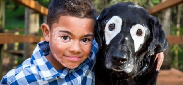 Η ιστορία του αγοριού και του σκύλου που έχουν και οι δύο λεύκη