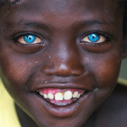 Η θλιβερή ιστορία ενός παιδιού από την Αφρική με τα πιο όμορφα μάτια στον κόσμο