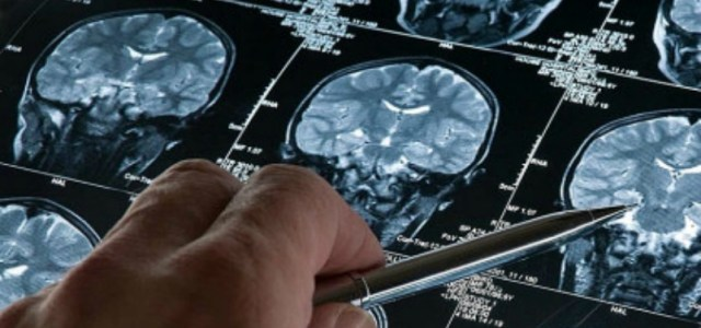 Τεχνητή νοημοσύνη: Επιστήμονες ανέπτυξαν ταχύτερη μέθοδο διάγνωσης του καρκίνου