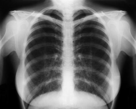 copd-lungs-x-ray
