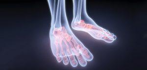 Причины развития болезни Дойчлендера (маршевого перелома). Маршевая стопа