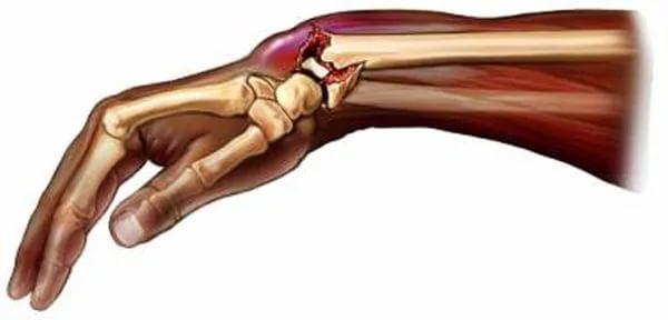 Каким образом и за сколько срастаются кости после перелома