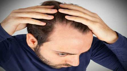 How-to-choose-the-right-solution-for-hair-loss-problem