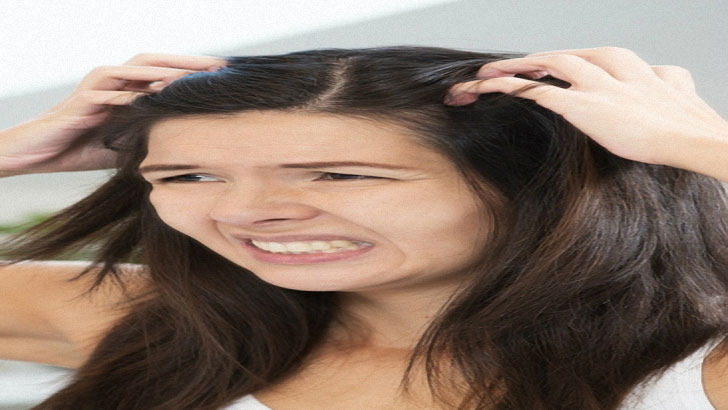 Itchy scalp hair loss – causes and symptoms