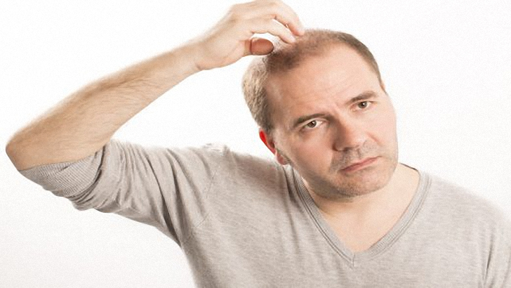 5 Natural Home Remedies For Baldness That Work!