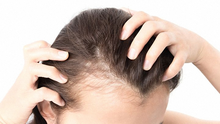 Hair Growth Tips and Treatment for Alopecia