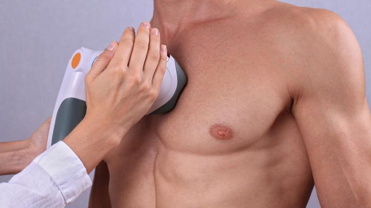 Laser Hair Removal Treatment for Men