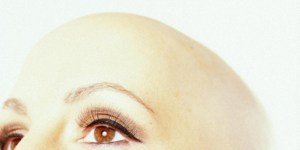 Coping With Cancer Hair Loss