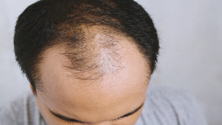Hair Transplants Are You a Candidate?