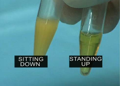 https://i2.wp.com/perfecthealthdiet.com/wp/wp-content/uploads/2012/10/Sitting-vs-Standing-Lipase.jpg