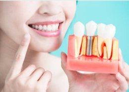 Dental Implants Green Valley