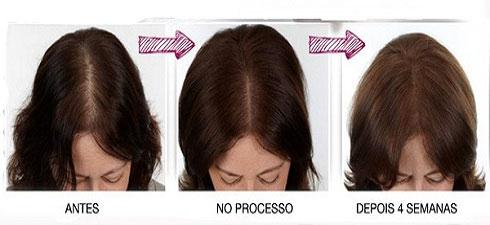 Kit ModVida: controla e combate a queda de cabelo