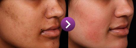 Resultado: clareamento da pele do rosto