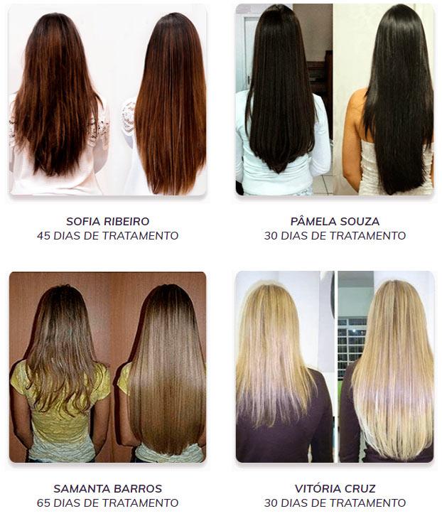 Resultado Capelli Hair: Antes e Depois