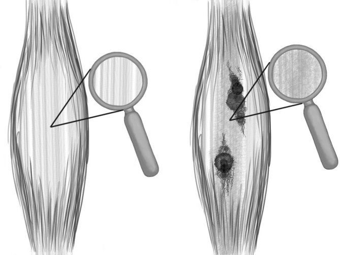Soft-Tissue-Therapy-Knots-and-Adhesions-Affect-Striations-in-the-Soft-Tissue