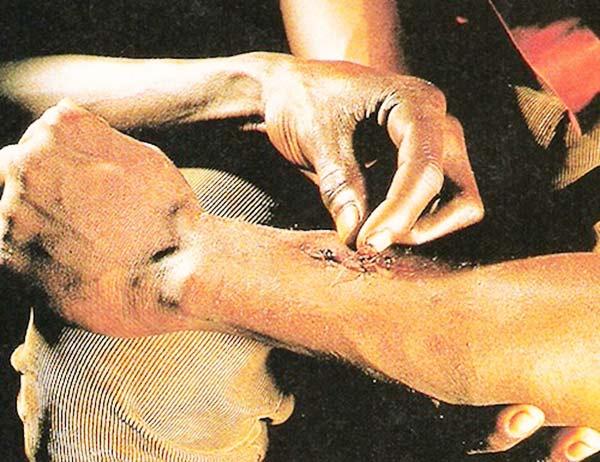 perierga.gr - 10 παράξενες θεραπείες με... ζώα!