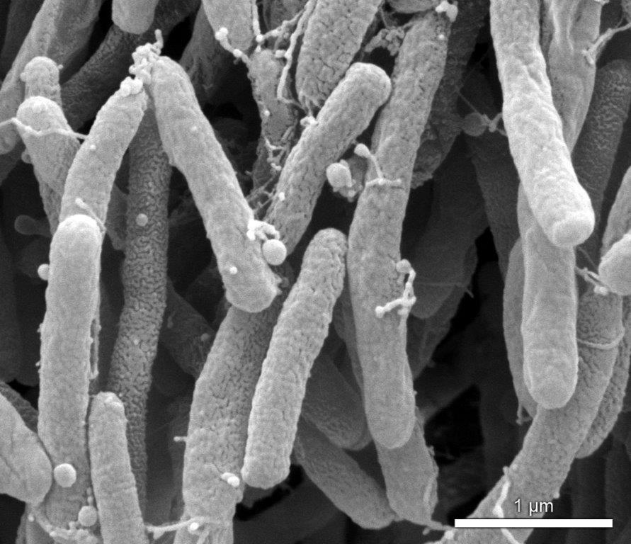 xyllela-fastidiosa-bacteria-woody-plants-pandemia-plague-Italy-Espain-olives-cicadidos-vectors