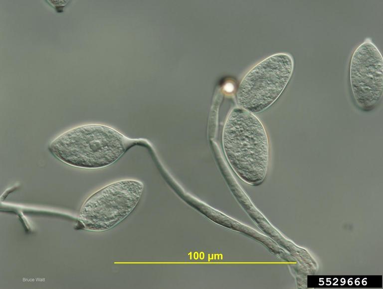 great-irish-famine-ireland-potato-pytophtora-infestans-1845-plague-oomycete