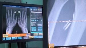 """Un médico ruso se implanta 5 microchips en las manos para hacer su vida """"más fácil"""""""