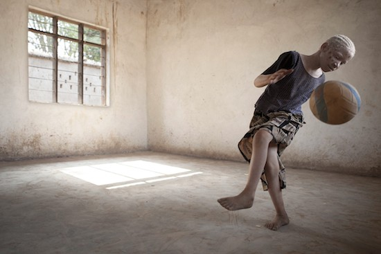 C) Ana Palacios. 'Albinos en Tanzania', expo en espaciofoto