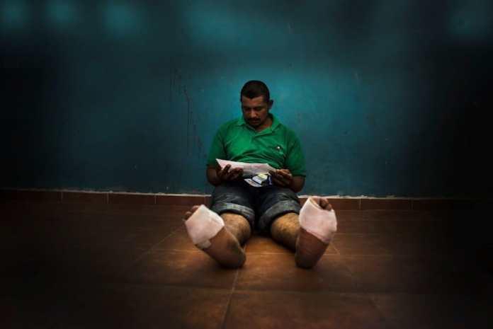 MSF: migrante centroamericano atendido por torturas en los pies