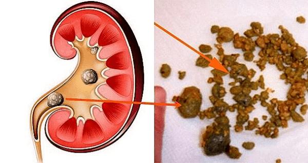 dolor de riñón y vitamina b e