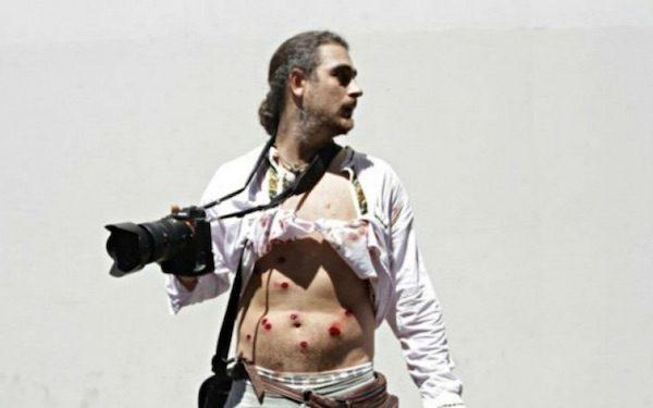 El fotoperiodista Pablo Piovano herido por postas disparadas por la policía. Fot: Agencia Pablo Urondo