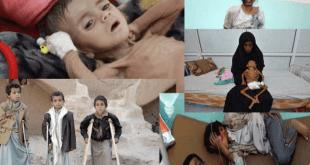 Niños afectados por la guerra en Yemen
