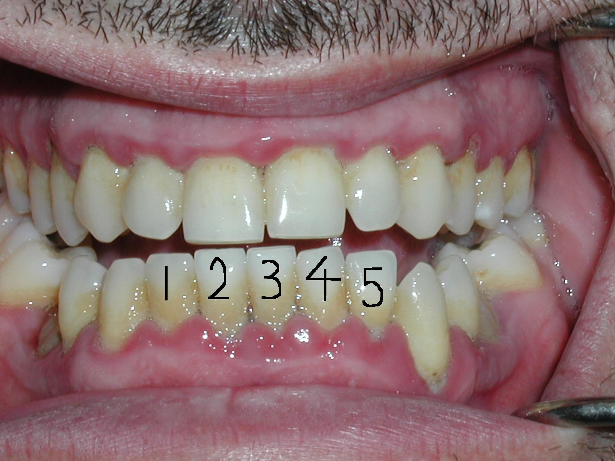 Blog Periodical Dental Disease