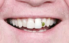 Food stuck between teeth