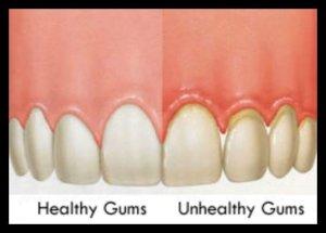 Heathy gums vs unhealthy gums