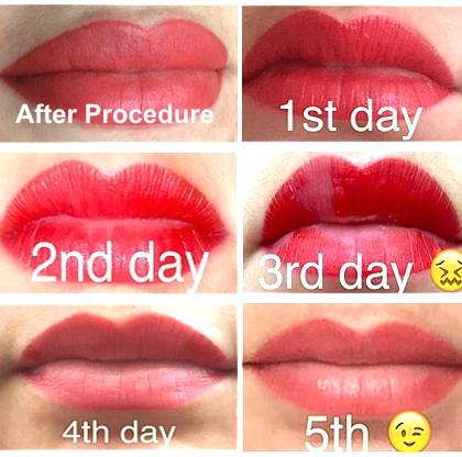 semi permanent lip procedure results