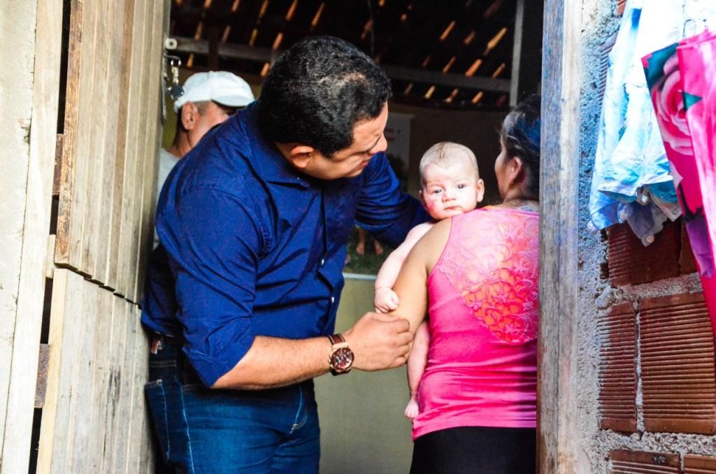 Solidário: Vereador Léo do AR visita criança com doença rara no CAIC