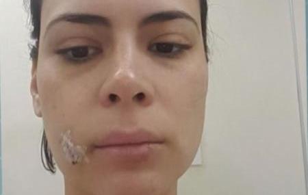 Jornalista da Globo leva 20 pontos após levar mordida de cachorro no rosto