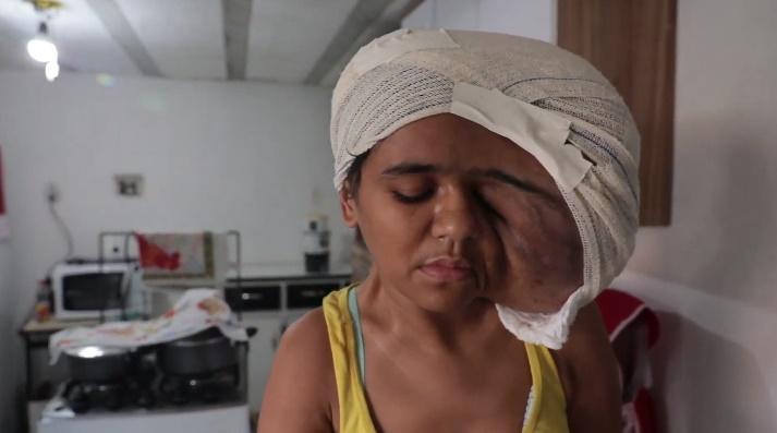 Mulher com tumor na cabeça causa comoção nos pernambucanos