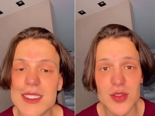 Cantor Saulo Poncio nega que tenha feito harmonização facial