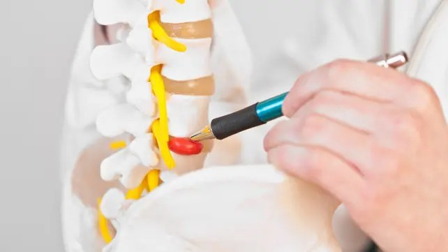 Scientific Chiropractor: Herniated Disc Signs and Symptoms