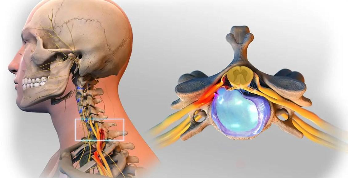 Progression & Diagnosis of Herniated Discs: Scientific Specialist - El Paso Chiropractor